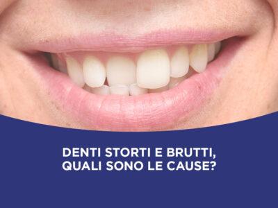 Denti storti e brutti, quali sono le cause