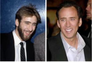 Nicholas Cage - denti storti e brutti le cause