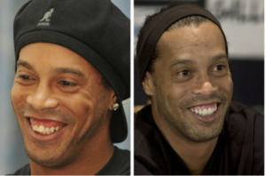 Ronaldinho - denti storti e brutti le cause
