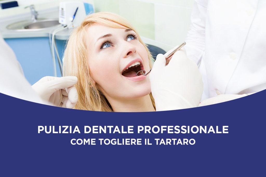 Pulizia dentale professionale: come togliere il tartaro