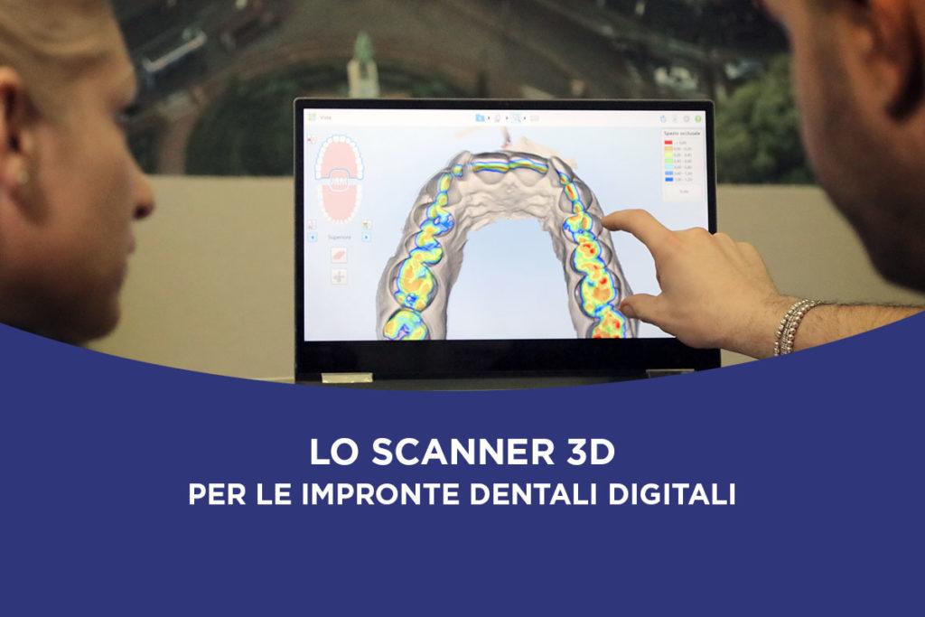 Scanner 3D impronte dentali digitali